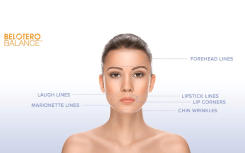 Belotero® is an injectable hyaluronic acid filler that is approved to temporarily smooth out and fill in etched-in lines on the face. While other fillers are designed to rebuild facial volume and structure, Belotero® specifically treats moderate to severe etched-in lines and wrinkles such as the vertical lip lines above and around the lips, corner lines and chin wrinkles. Learn More
