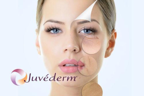 Juvederm_split
