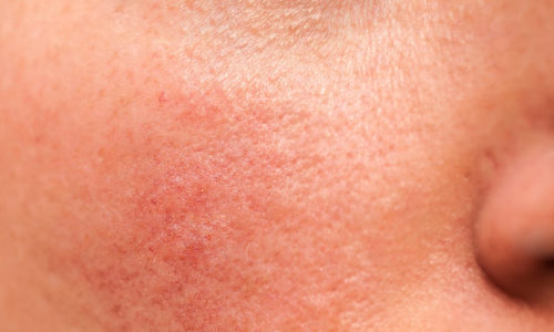 Medical Laser Solutions - Rosacea Treatment