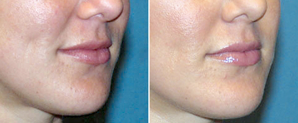 Medical Laser Solutions - Juvederm Ultra Treatment