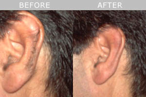 laser-hair-removal-ear
