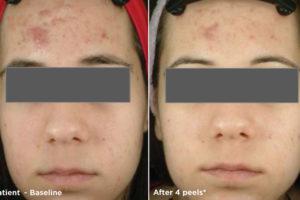 new-Glytone-acne1
