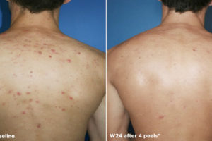 new-Glytone-acne2