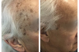 pigmented-lesions1