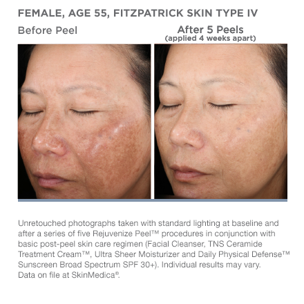 Medical Laser Solutions - SkinMedica Rejuvenize Peel