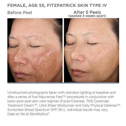 Medical Laser Solutions - SkinMedica Rejuvenize Peel