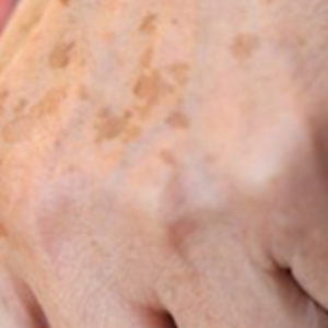 We all have brown spots on our skin. When skin is exposed to the sun, it causes an increase in the production of cells known as melanocytes that increase melanin in the skin, thus turning the skin darker. These dark skin patches are known as brown spots, age spots, dark spots, sun spots and liver spots.Learn More