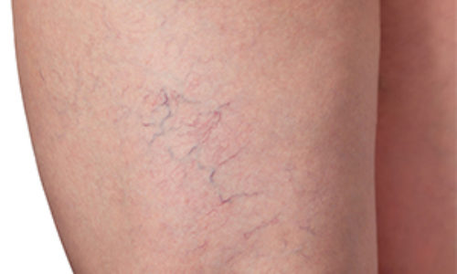 Spider veins bother millions of people. They are a group of small dilated veins that appear close to the surface of the skin and resemble spider webs or tree branches. These veins usually appear on the face and legs.Learn More