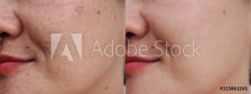 AdobeStock_315863265_Preview