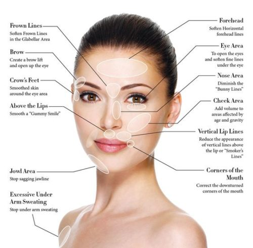 Medical Laser Solutions - Botox