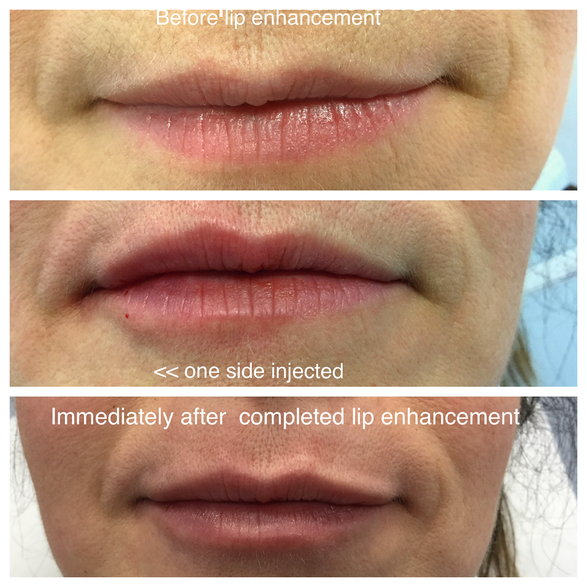Medical Laser Solutions - Juvederm Ultra XC Lips